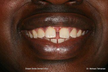 Before gappy teeth
