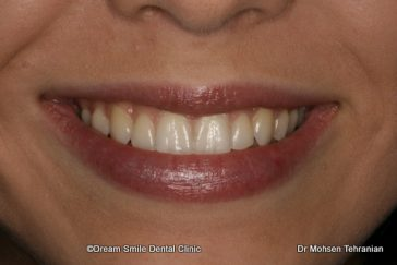 After Invisalign Teen