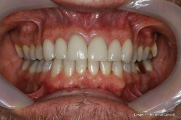 After Invisalign and emax veneers