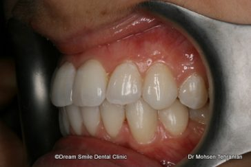 After Case 23 Invisalign