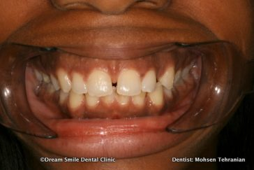 Before Whitening After Invisalign