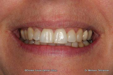 Before Laser Gum Contouring 1