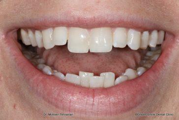 Before Lower teeth crowding