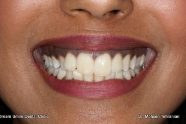 Gum Bleaching Gum Depigmentation Dream Smile Dental