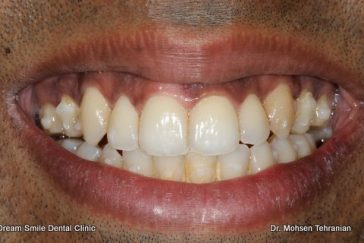 Before gum depigmentation