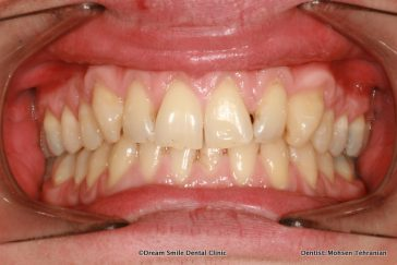 Before Composite Bonding and 2 Emax Crowns