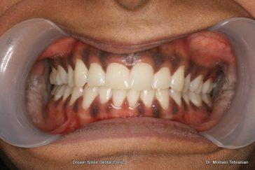 Before Gum Contouring