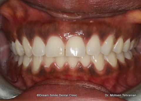 1 Img 9088 Dream Smile Dental Clinic