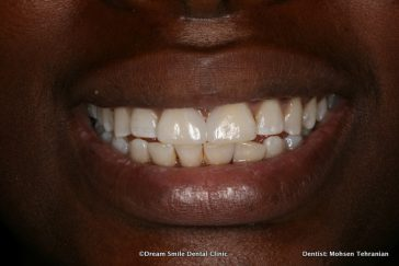 After composite Bonding to close large Space between teeth