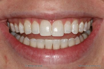 After Lower teeth crowding