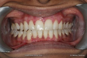 After Gum Contouring
