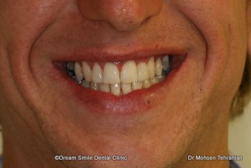 After Case 22 Invisalign