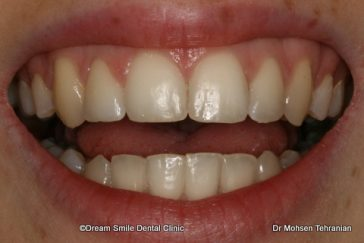 After Case 02 six month Smile