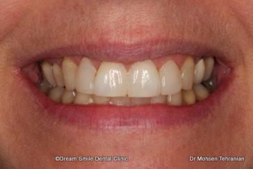 After Laser Gum Contouring 1