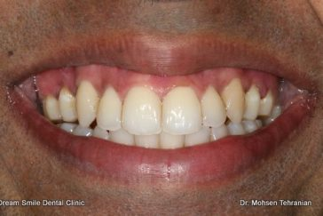 After gum depigmentation