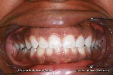 After Whitening After Invisalign