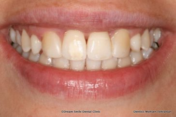 After Invisalign then composite bonding