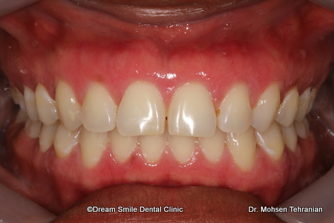 2 Img 9442 Dream Smile Dental Clinic