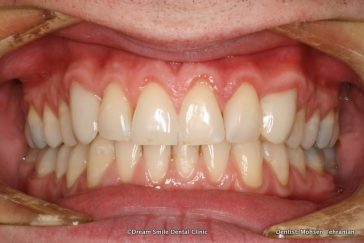 After Composite Bonding and 2 Emax Crowns
