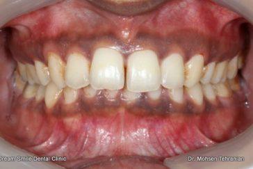 Before Gum Depigmentation laser