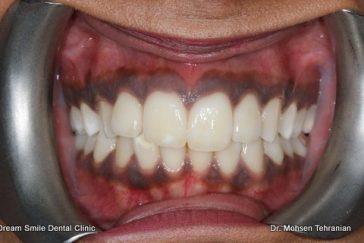 Before Gum Bleaching of dark gums