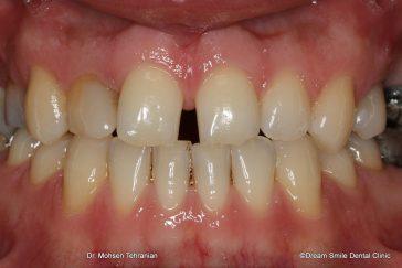 Before composite veneers to close gappy teeth
