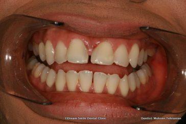 Before Lumineers upper and lower teeth