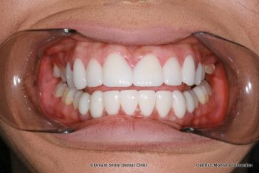 After Lumineers upper and lower teeth