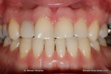 After composite veneers to close gappy teeth