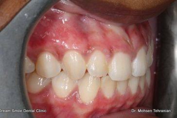 Gum Bleaching ( Gum Depigmentation ) - Dream Smile Dental Clinic