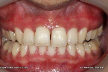After Gum Depigmentation laser