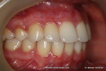 After dark gum laser treatment