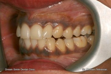 Gum Bleaching Gum Depigmentation Dream Smile Dental