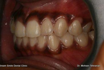 Before Gum Bleaching