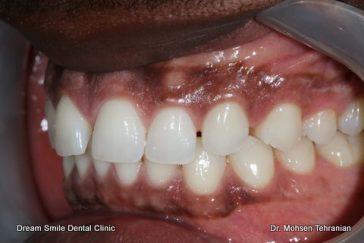 Before Dark Gum Pigmentation