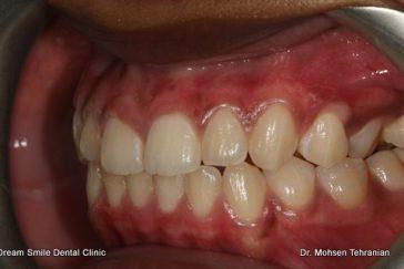 After Gum Bleaching