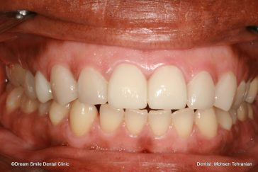 After E-max veneers and Crowns