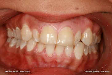 Before Combination of Invisalign and 2 E-max veneers