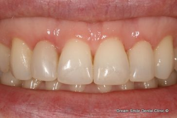 After Composite filling front tooth