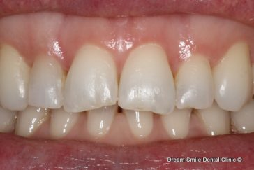 Before Composite filling front tooth