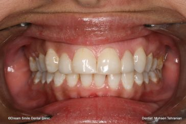 After Combination of Invisalign and 2 E-max veneers