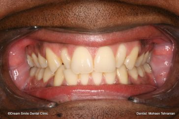 Before Combination of Invisalign and 2 composite veneers