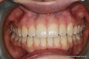 After Invisalign and bonding
