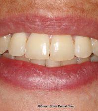 Laser Gum Contouring Dream Smile Dental Clinic