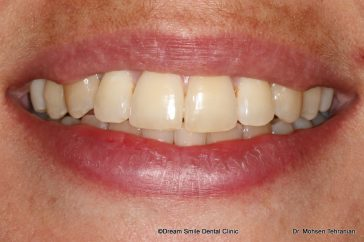 After Invisalign Full with Dream Smile