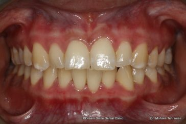 After Gum Whitening