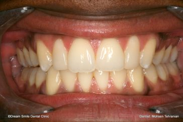 After Combination of Invisalign and 2 composite veneers