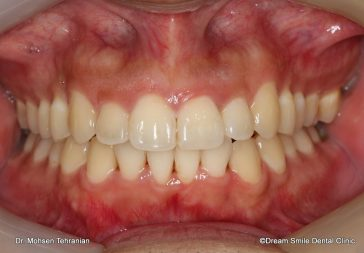 After Invisalign Full Complex