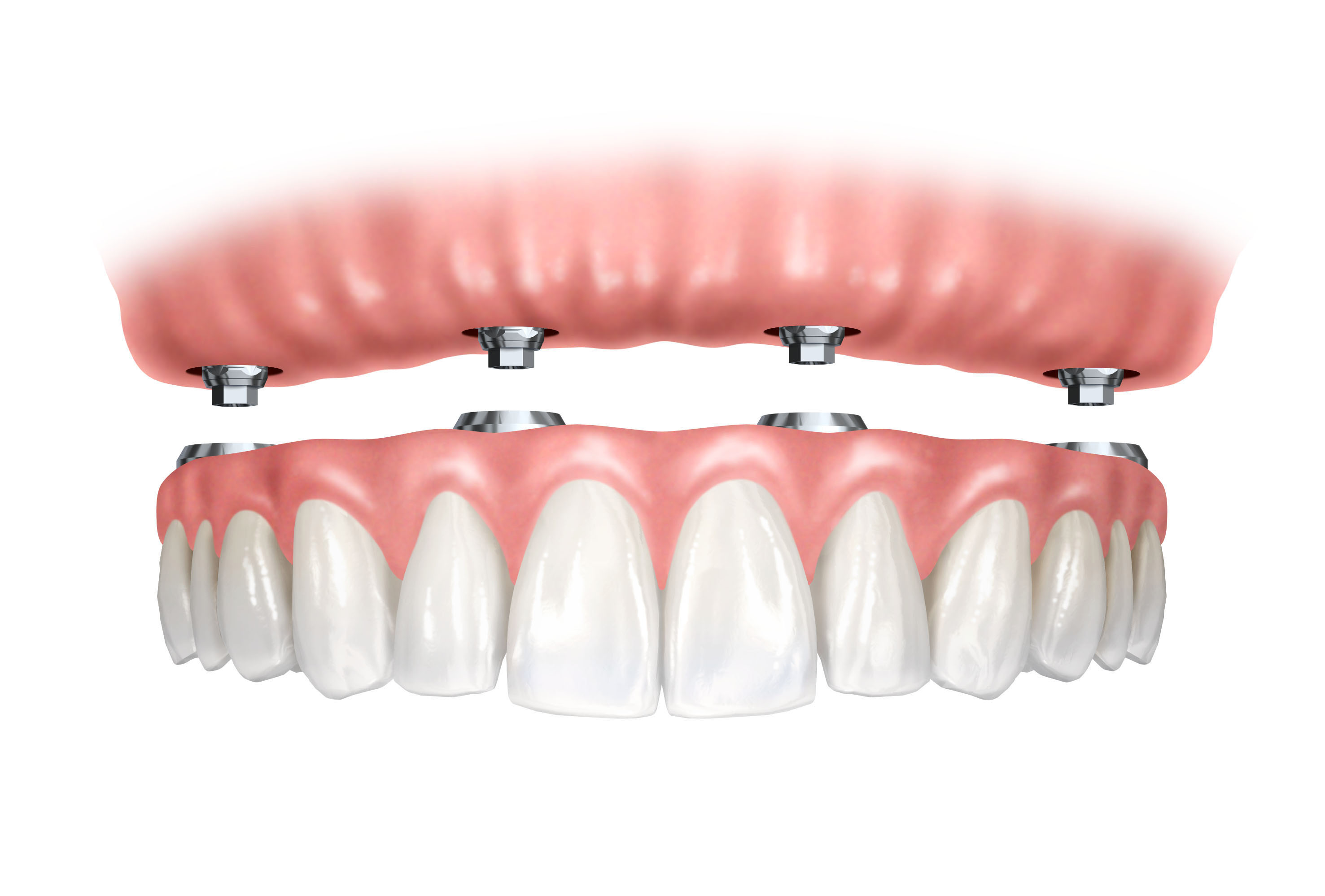 Implant Retained Denture Dream Smile Dental Clinic