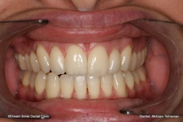 After Invisalign 04